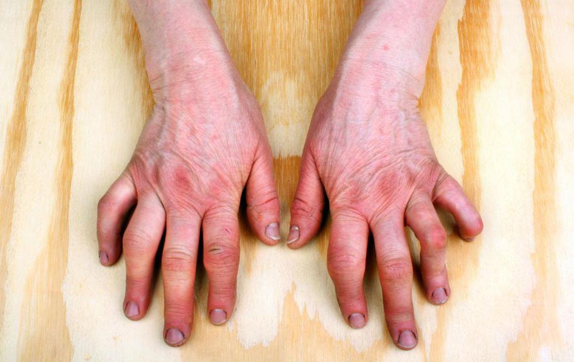 incrediblesearches.com   Do you have psoriatic arthritis symptoms